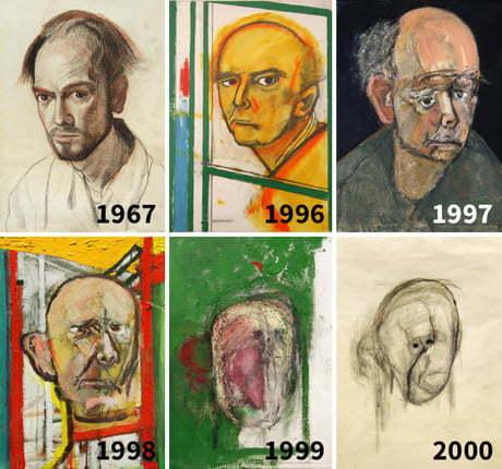 هنرمندی که ابتلا به الزایمر را در اثارش ثبت کرد
